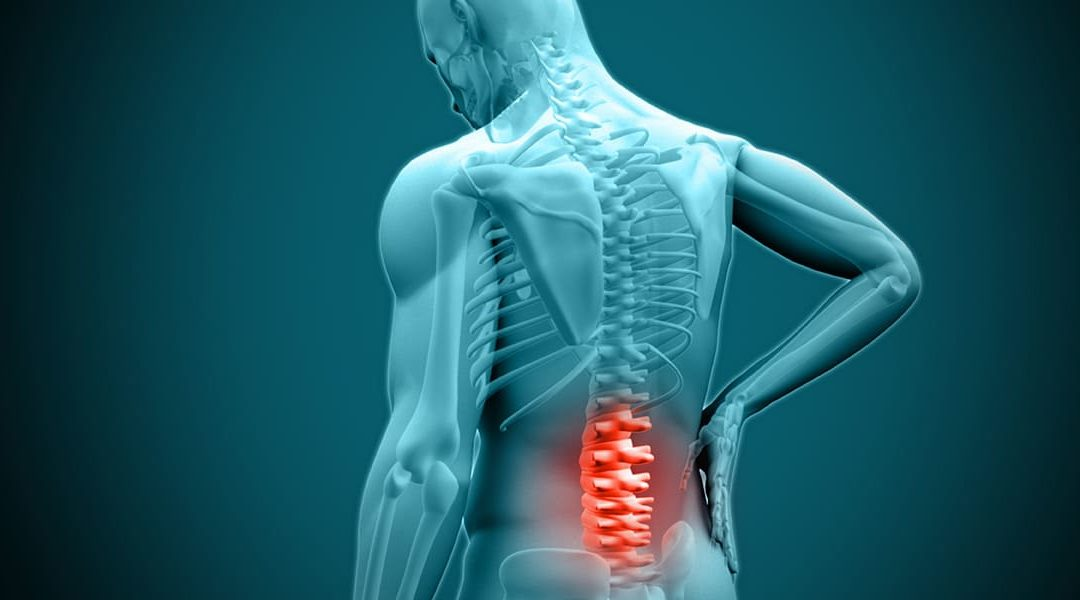 Acupressure to help with a Herniated Disk